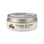 Tummy Butter for Stretch Marks - 4.4 oz. (Palmer's)