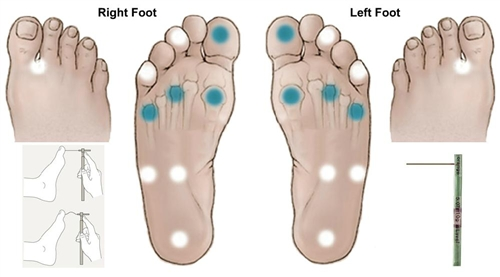 Assessment of sensory neuropathy in patients with diabetic foot ...