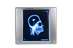 <b>X-Ray Film Illuminator LED - Single Bank<b/>