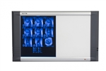 <b>X-Ray Film Illuminator LCD - Double Banks<b/>