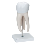 Giant Molar with Dental Caries Model | Giant Molar Model with Dental Caries |  Giant Molar Model | Molar Model with Dental Caries | Giant Molar with Dental Cavities, 15 times life size, 5 part D15 | Buy 3B Scientific D15 Giant Molar with Dental Cavities