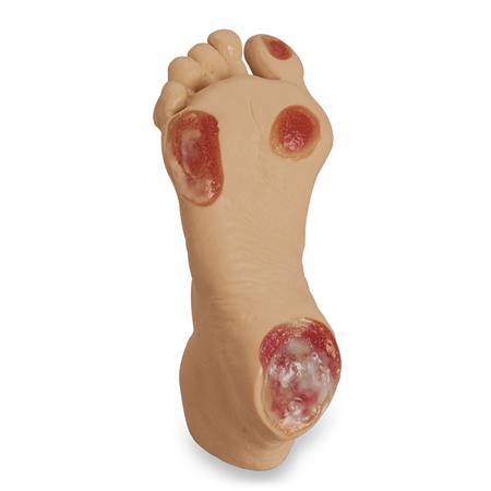 Pressure Ulcer Foot | Pressure Ulcer Foot  Model | Elderly Pressure Ulcer Foot Model | Life/form Elderly Pressure Ulcer Foot White | Life/form LF00933U Elderly Pressure Ulcer Foot Model LF00933U | Buy Life/form Elderly Pressure Ulcer Foot  Model On Sale