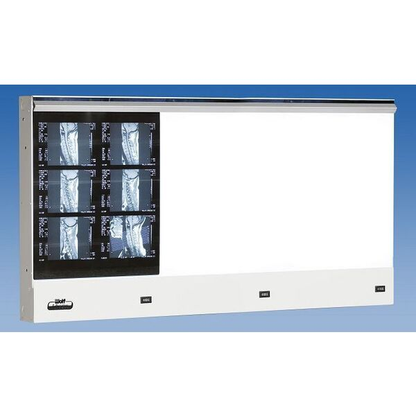 The Liberator Viewbox 3 in 1 Horizontal (4 Bulb) (22803)