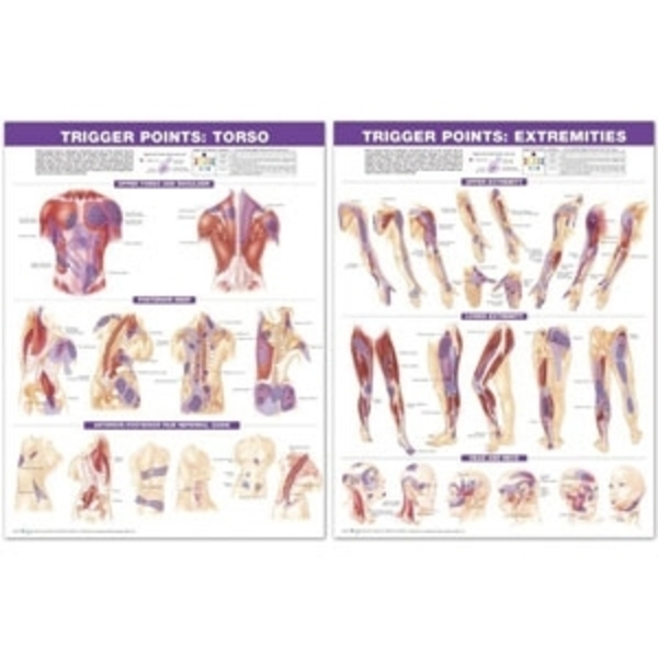 Trigger Point Chart Set Laminated (AC-06)