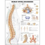 "Human Spinal Disorders 20"" X 26"" Laminate (573 010"