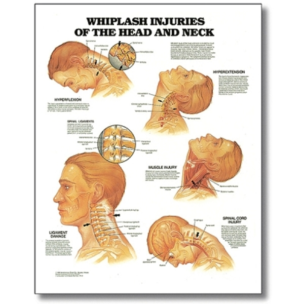 "Whiplash Injuries Of Head & Neck 20"" X 26"" Styrene"