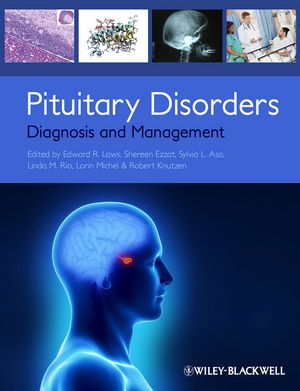 Pituitary Disorders:  Diagnosis and Management