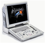 Z6 Portable Color Doppler Diagnostic Ultrasound System