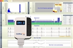 Schiller medilog® DARWIN2 Physician Enterprise Software w/ One AR-12 PLUS Holter Recorder