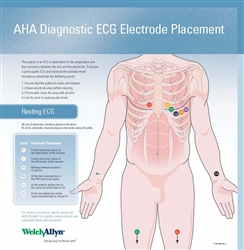Welch Allyn EKG Hookup Wall Chart