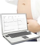 Obstetric Archive Software Package for Sonicaid Antepartum Monitors