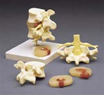 Lumbar Vertebrae Teaching Model