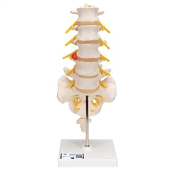 Lumbar Spinal Column with Dorso-Lateral Prolapsed Intervertebral Disc