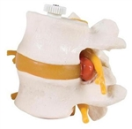 3B Scientific 2 Human Lumbar Vertebrae with Prolapsed Disc, Flexibly Mounted Smart Anatomy