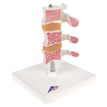 3B Scientific Deluxe Human Osteoporosis Model (3 Vertebrae with Discs ), Removable on Stand Smart Anatomy