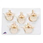 Set of 5 Lumbar Vertebrae