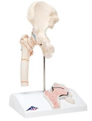 Femoral Fracture and Hip Osteoarthritis