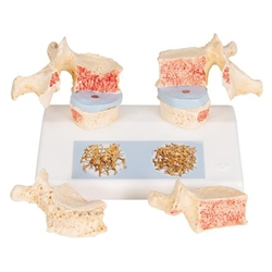 Osteoporosis Spine Model