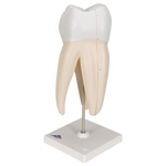 3B Scientific Upper Triple-Root Molar Human Tooth Model, 3 Part Smart Anatomy