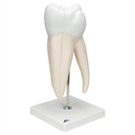 3B Scientific Giant Molar with Dental Cavities Human Tooth Model, 15 Times Life-Size, 6 Part Smart Anatomy
