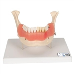 3B Scientific Dental Disease Model, Magnified 2 Times, 21 Parts Smart Anatomy