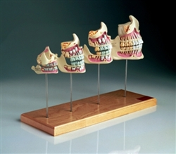 Teeth and Jaw Development Set