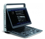 SonoScape E1 Portable Digital Ultrasound System