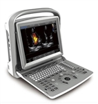 Chison ECO 6 Ultrasound System