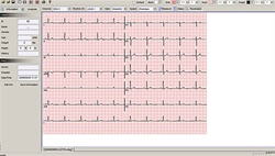 Bionet EKG Plus II Software