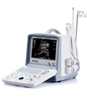 EMP-2100 Digital Ultrasonic Diagnostic Imaging System