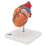3B Scientific Classic Human Heart Model with Left Ventricular Hypertrophy (LVH), 2 Part Smart Anatomy