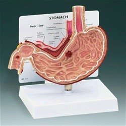 Stomach with Ulcers Model