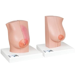 Model of Female Breast
