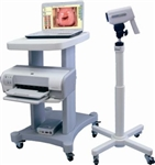 Lutech Digital Video Colposcope System