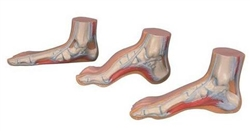 MEDart™ Foot Series (Normal, Flat and Hollow Feet)