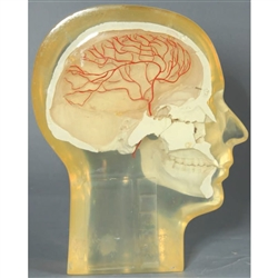 RSD Transparent Half Angiographic Head w/ Step Wedge