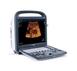 SonoScape S2 Portable Color Doppler Ultrasound System