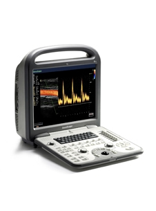 China 4d color doppler ultrasound scanner similar sonoscape s6.