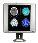 LED X-Ray Radiology Viewbox with Dimmer, Film Activating Switch, Grip and Stand