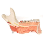 3B Scientific Comprehensive Lower Jaw Model (Left Half) with Diseased Teeth, Nerves, Vessels & Glands, 19 Part Smart Anatomy