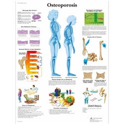Osteoporosis Chart