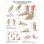 3B Scientific Foot and Joints of Foot Chart, Anatomy and Pathology