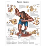 3B Scientific Sports Injuries Chart