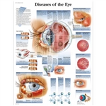 3B Scientific Diseases of The Eye Chart