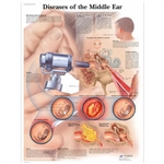 3B Scientific Diseases of The Middle Ear Chart