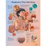 3B Scientific Respiratory Tract Infections Chart