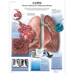 3B Scientific COPD Chart, Chronic Obstructive Pulmonary Disease
