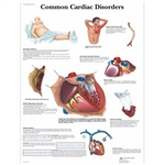 3B Scientific Common Cardiac Disorders Chart