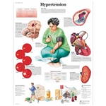 3B Scientific Hypertension Chart