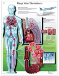 Deep Vein Thrombosis Chart
